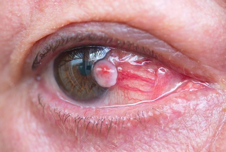 infección ocular infecciosa