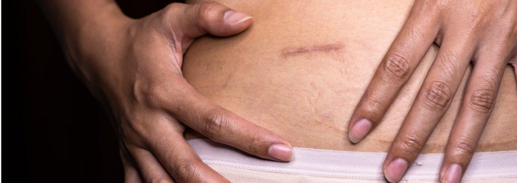 Acelerar cicatrización piel